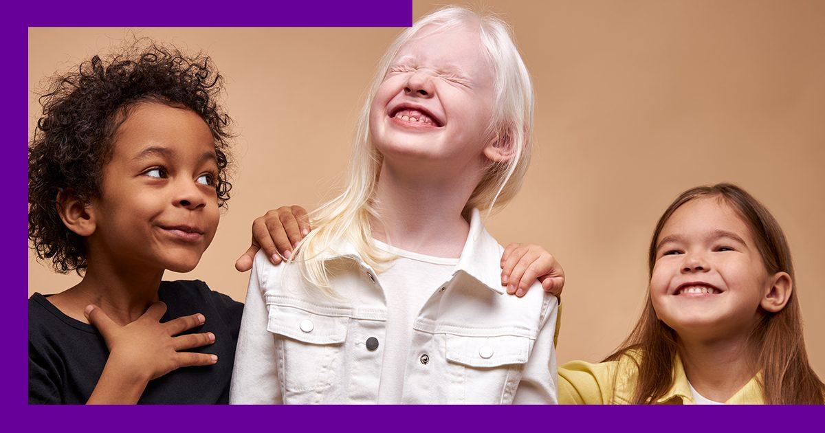 Imagem com três crianças sorrindo, sendo uma delas albina.